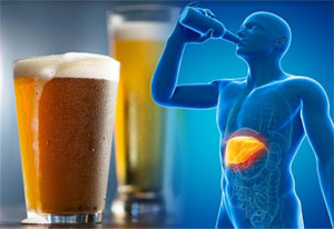 ACG's New Guideline for Management of Alcoholic Liver Disease