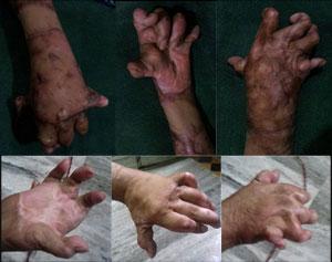 Severe Post burn deformities of yemeni citizen successfully treated at KIMS Hospital