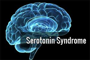 Serotonin syndrome rare when triptans & antidepressants used together : JAMA