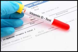 When do you really need Vitamin D Tests ?
