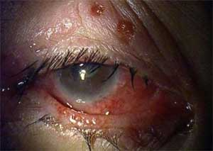 Herpes simplex virus type 1: an atypical presentation of primary infection