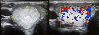 Ultrasound Classification Of Thyroid Nodules Role Of Ti Rads