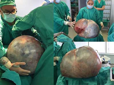 Ovarian tumour weighing more than 30 kg removed from woman
