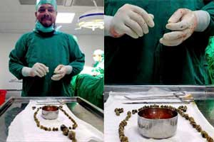 Doctors remove 99 stones from woman's gallbladder