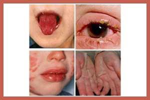 Latest Treatment For Kawasaki Disease