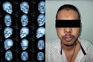 Doctors conduct Submental Intubation in maxillofacial trauma to save life