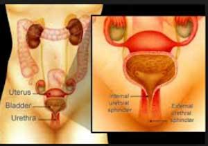 Antibiotics benefit women suffering from recurrent cystitis or chronic bladder pain