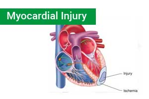 High sensitivity cardiac troponin may not rule out myocardial ischemia: Study