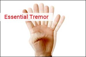 Wrist band to improve symptoms of Essential Tremor
