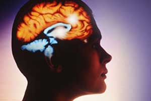 Migraine linked to higher risk for stroke, MI