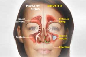 Study of Mucus to predict type of Sinusitis treatment for best outcomes