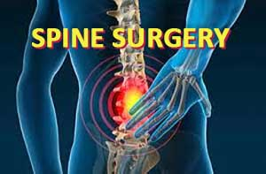Preoperative Opioid use worsens Spine Surgery outcomes