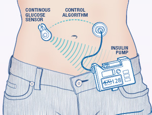 Artificial pancreas a safe,effective Rx option for T1DM : BMJ