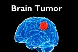 Minimally Invasive Technique to burn away brain tumour Cells
