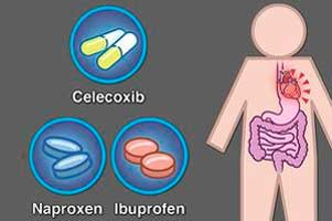 Celecoxib added to aspirin reduces its cardiac safety advantage
