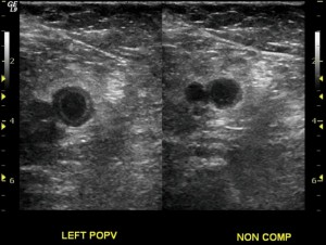 Ultrasound protocols for DVT: consensus recommendations