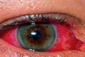 Increased Risk of Uveitis Associated With Hypovitaminosis D