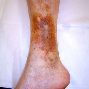 Silver dressings better than others in Venous Leg Ulcer Treatment
