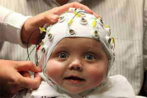 Eeg Signals Accurately Predict Autism >> Eeg Provide Early Accurate Prediction Of Autism In Infants