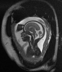 Fetal MRI can reliably spot holoprosencephaly as early as 18 gestational weeks