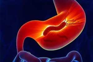 ACG : H. Pylori Infection Treatment Recommendations