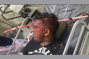 Iron rod removed from Kolkata's youth's skull