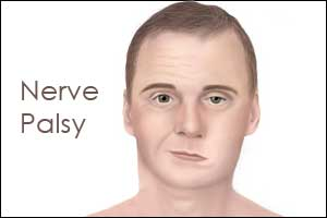 Case of Benign Recurrent Sixth Nerve Palsy in a Child