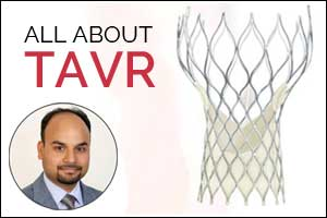 TAVR changing the game again- Dr Anoop Agrawal