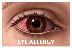 New Eye Treatment for Seasonal Allergies discovered