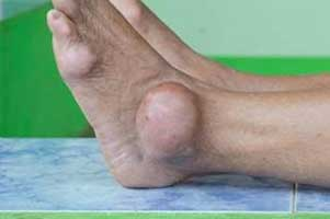 One fourth of gout patients have sleep disorders