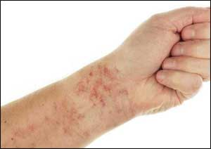 Guideline based Management of Chronic Urticaria