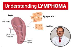 "lymphoma \u2013 a curable blood cancer\"" dr rahul bhargava speciality\u201clymphoma \u2013 a curable blood cancer\u201d dr rahul bhargava"