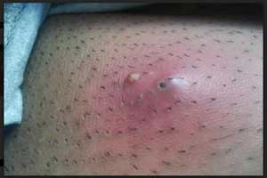 Iclaprim-Novel Antibiotic for bacterial skin infections