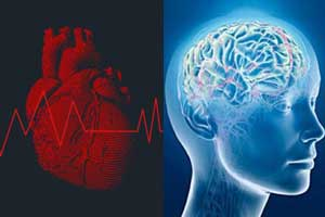 Expert consensus on cognitive function and arrhythmias