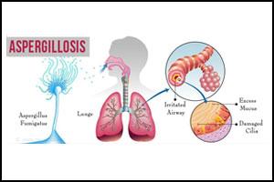 Guideline for management of Aspergillosis