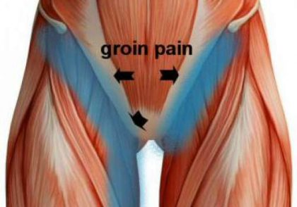 New surgery for groin pain found to be more effective than physiotherapy