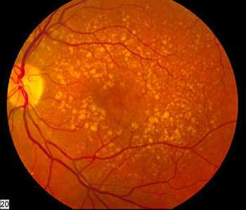 Prolonged use of Anticholinergic drugs linked to Macular degeneration