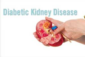New test can predict onset of kidney damage caused by diabetes