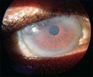 Secret in the eyes - fish eye disease