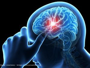 Higher iron linked to increased stroke risk