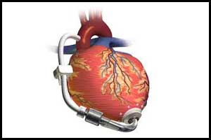 New cardiac pump device more cost effective than Standard Pump