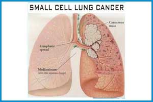 A new type of lung cancer  discovered by Researchers