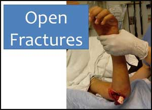 Standard dressing as good as Hi Tech wound therapy in open leg fractures