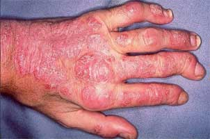 ACR and NPF release Joint guideline for psoriatic arthritis