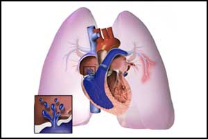 25% patients have residual pulmonary hypertension after Pulmonary endarterectomy