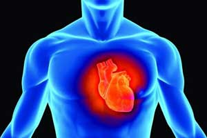 Norepinephrine- a preferred vasopressor option for cardiogenic shock after MI : JACC