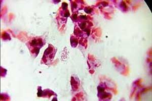 Sitafloxacin most effective for eradication of Chlamydia trachomatis among men