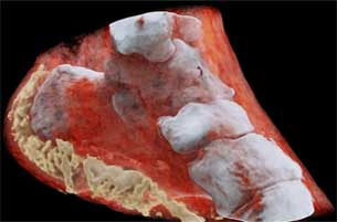 Scientific Marvel- First 3-D Colour X-Ray for diagnosing Diseases
