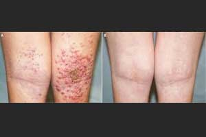 A case of a rare and serious skin infection – Eczema Herpeticum