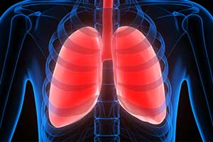 People with diabetes at increased risk for restrictive lung disease
